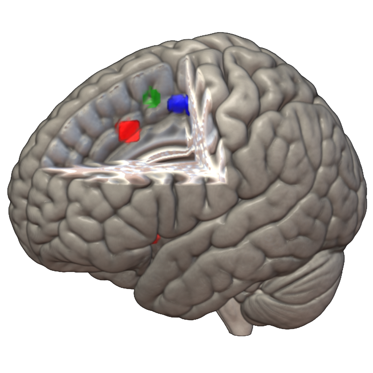 58. Nonlinear functional mapping of the human brain